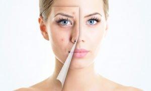 Лікування прищів на обличчі
